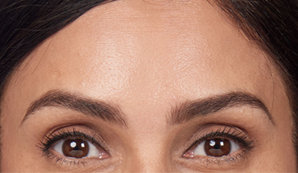 forehead after wrinkle relaxer