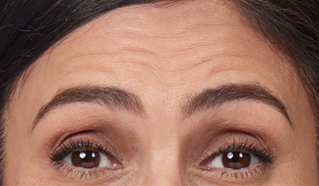 woman with forehead lines before wrinkle relaxer