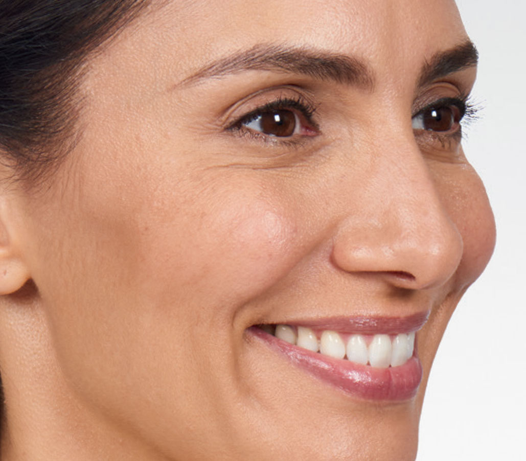 eye lines after wrinkle relaxer