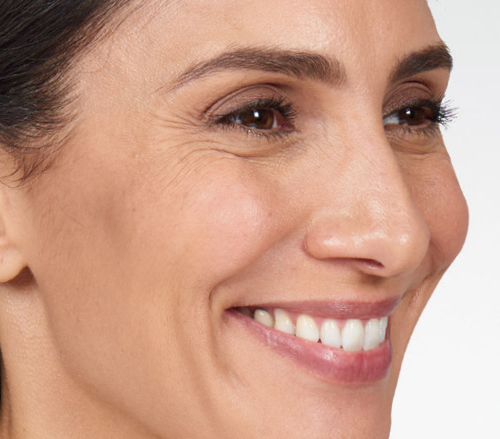 woman with crows feet before facial treatment