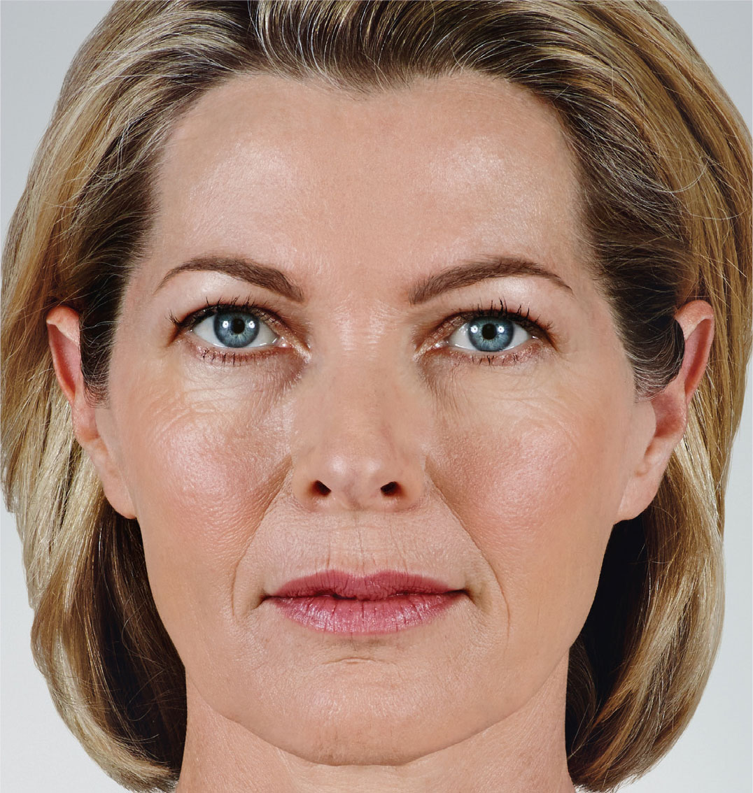 woman's face with wrinkles