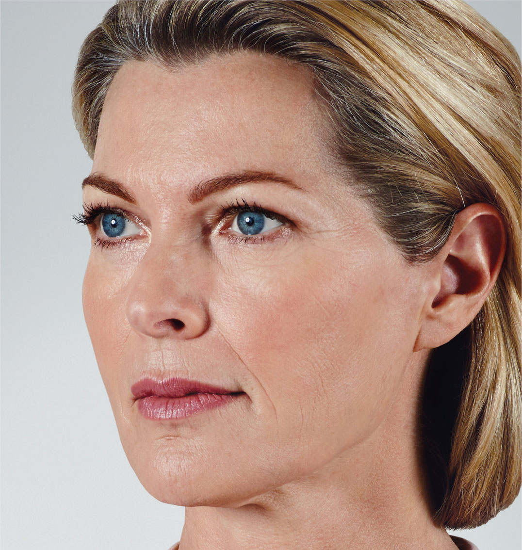 lady with facial age lines