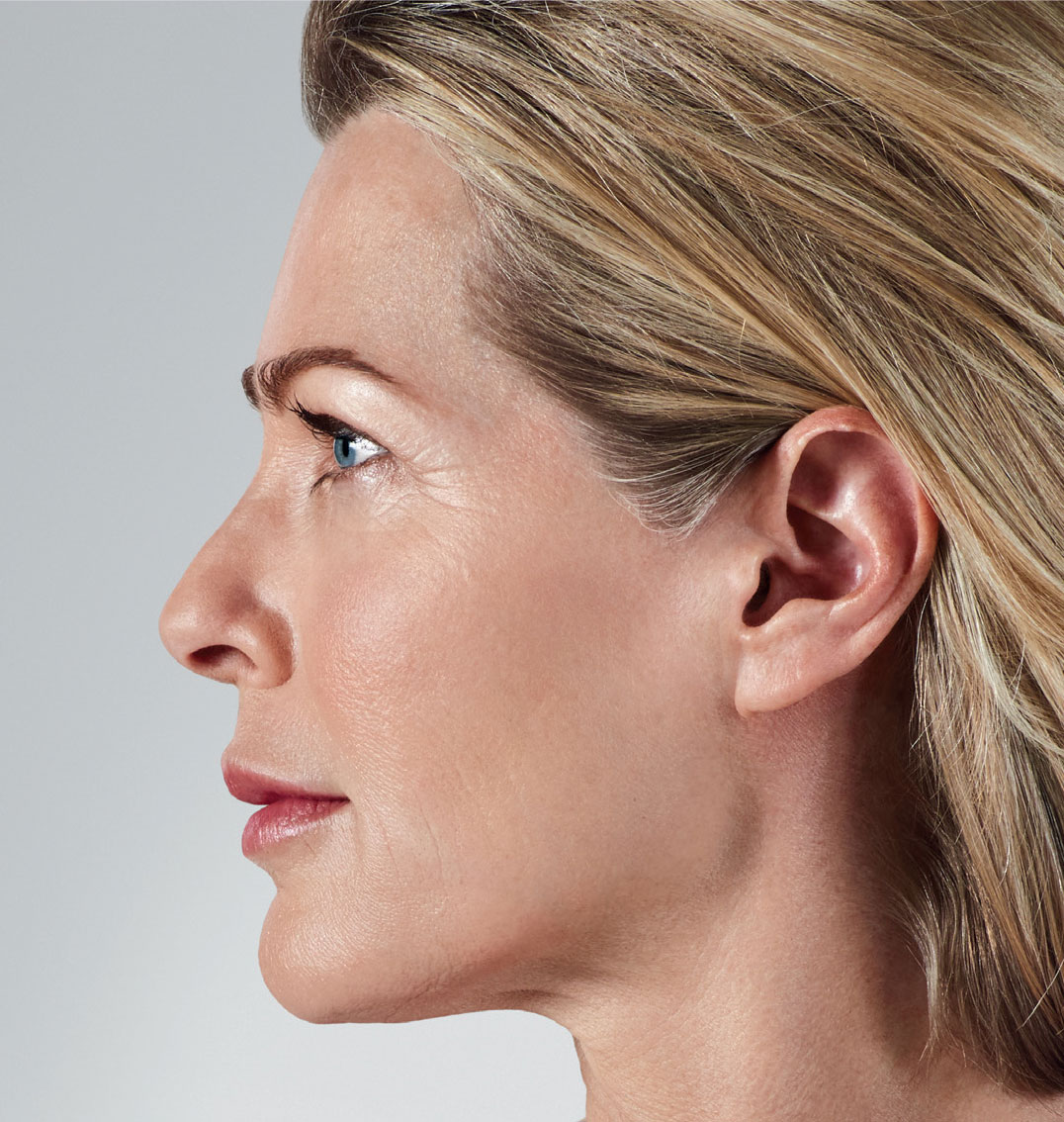 cheek lines of an old woman after facial fillers