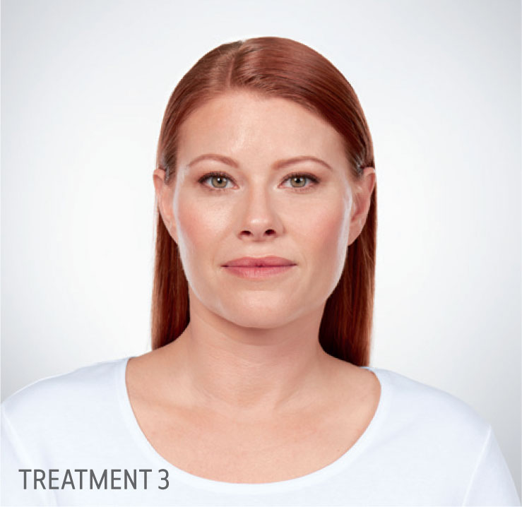 kybella after treatment for woman