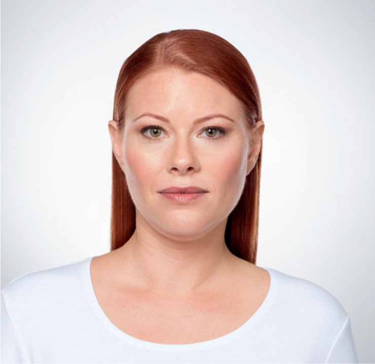 woman with double chin