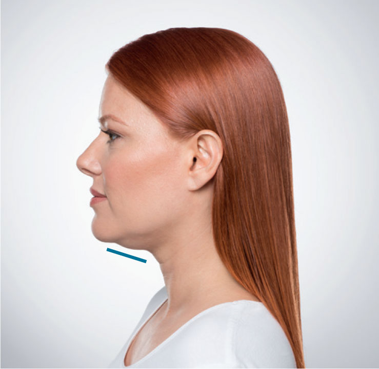 fat under the chin before facial filler