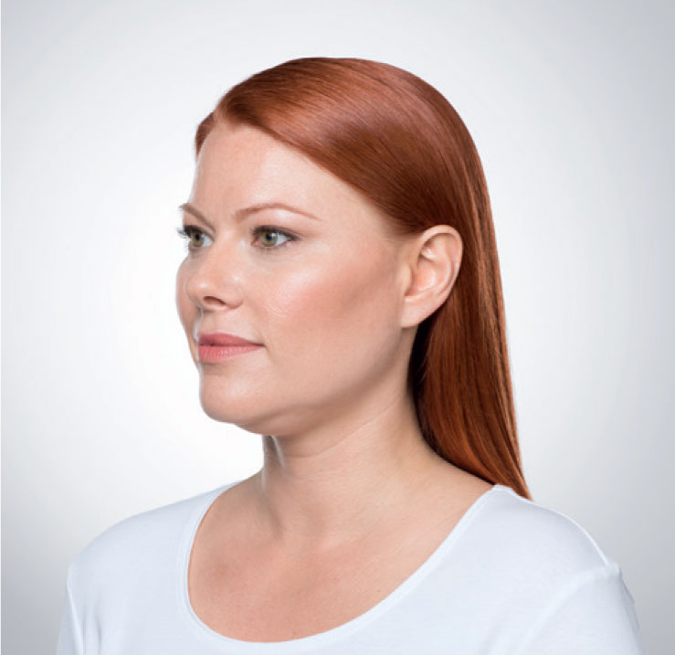 woman with chin fat