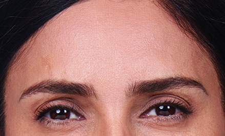 forehead wrinkles gone after facial treatment